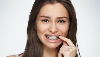 Болят зубы с брекетами