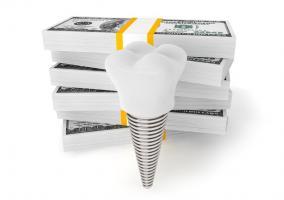 Деньги на имплант зуба