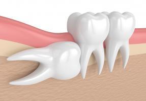 Горизонтальный рост зуба мудрости