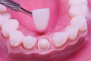 Коронка на живой зуб