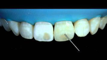 Темные пятна на зубах