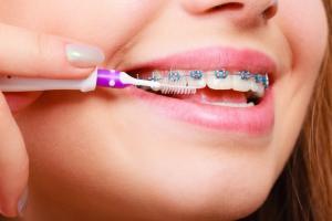 Уход за зубами после установки брекетами