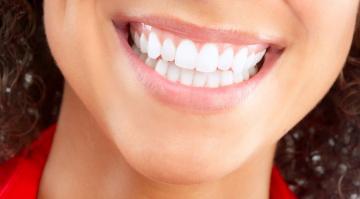Виниры на нижних зубах