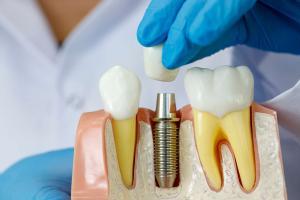 Выбор варианта имплантации зубов